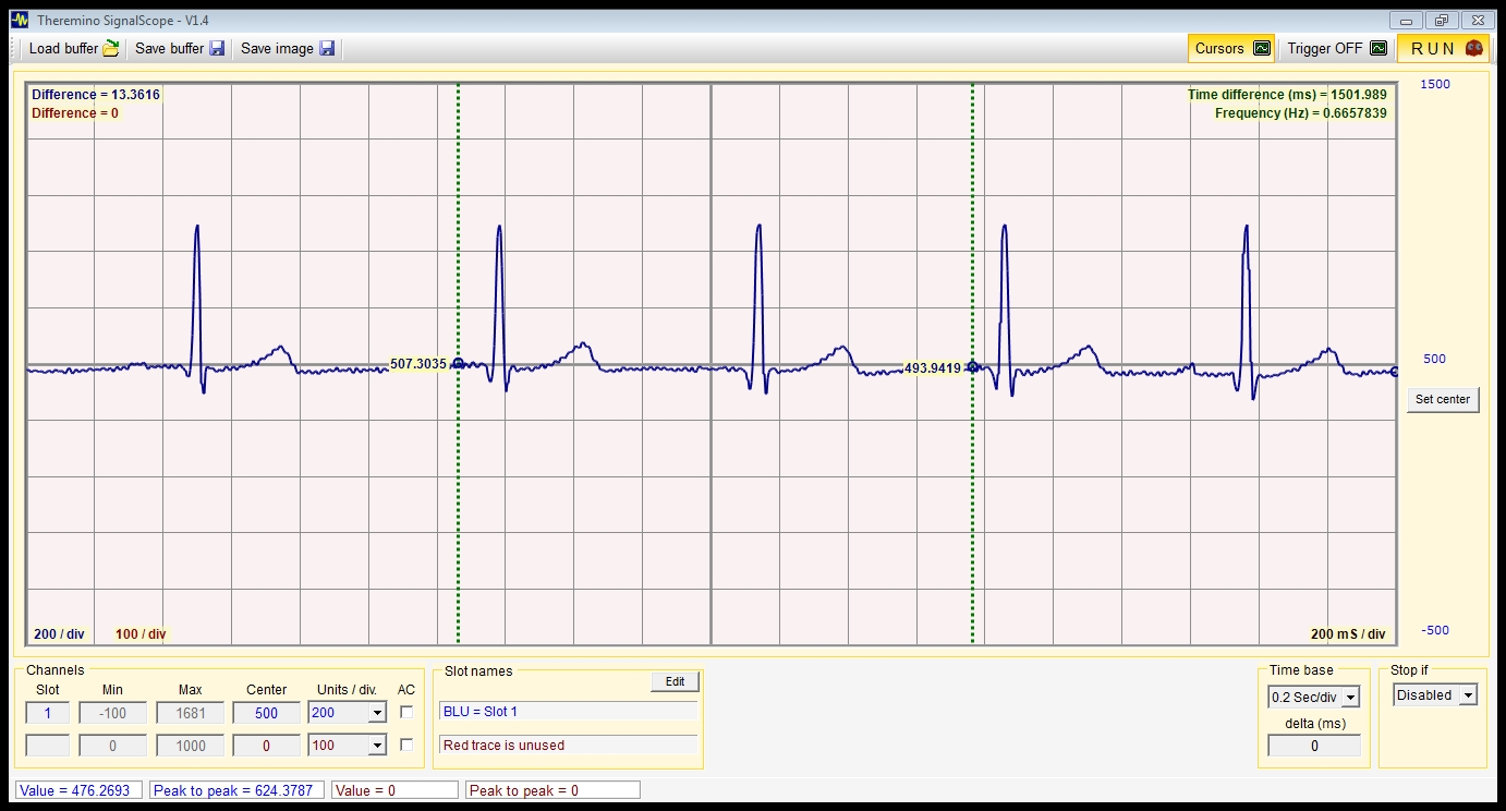 Ecg With Theremino Physicsopenlab Figure 4 Circuit Diagram Of A Heart Rate Monitor Screenshot From Psoc The Graphs Below Show However Some Tracings As They Are Represented By Signalscope Software